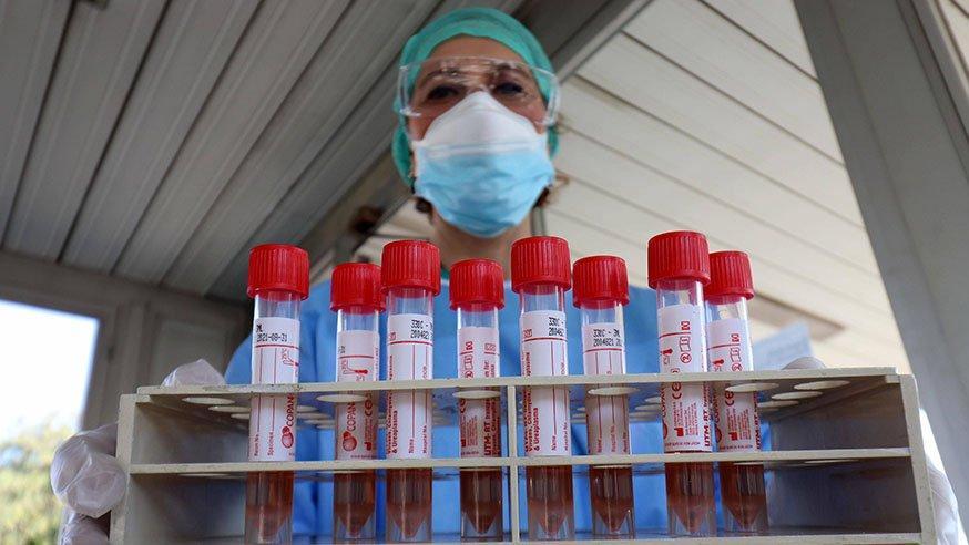 Türkiye'de corona test sayısı toplam kaç oldu? Corona testi hangi hastanelerde ücretsiz olarak yapılıyor?