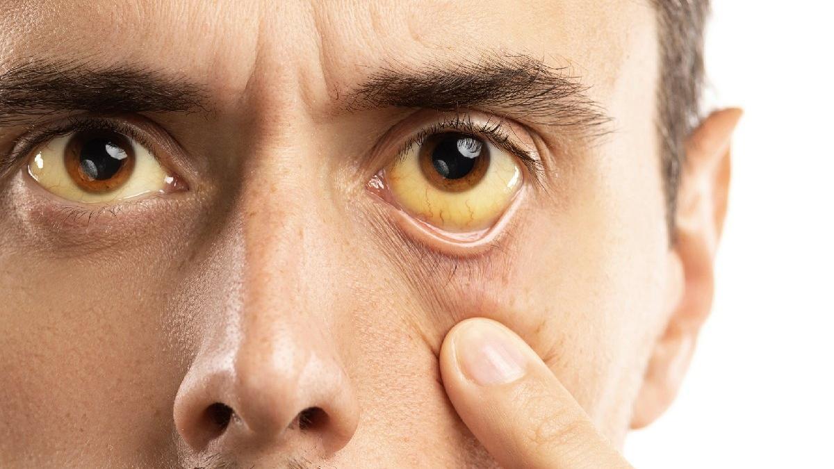 Sarı humma hastalığı nedir? Sarı humma nasıl bulaşır?