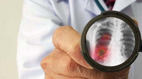 CHP'li doktor vekil Şeker sordu: Ölüm sayılarındaki bu artış neden?