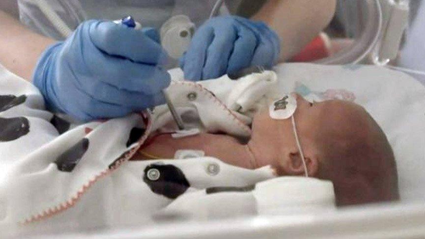 Prematüre bebek corona virüsünü yendi