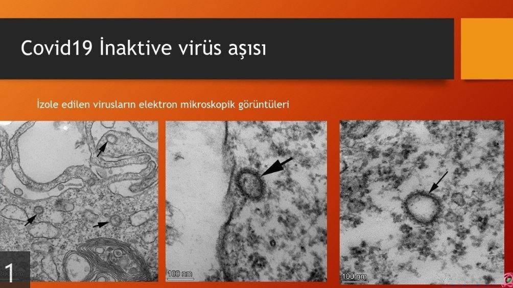 Ercüment Ovalı paylaştı! İşte virüsü parçalayan aşının görüntüsü