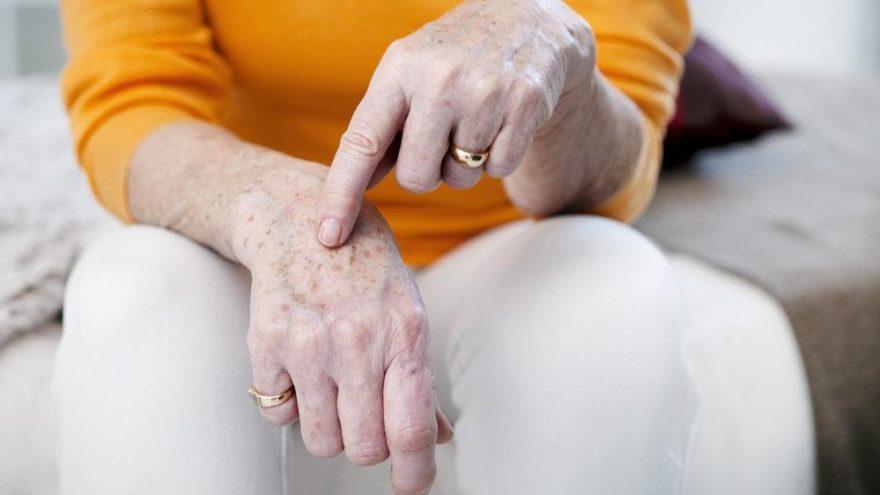 Yaşlılık lekeleri ne zaman başlar? Nasıl geçer? Doğal öneriler…