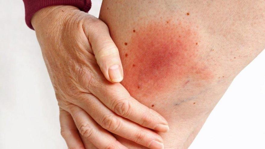 Lyme hastalığı nedir? Lyme hastalığı belirtileri ve tedavisi...