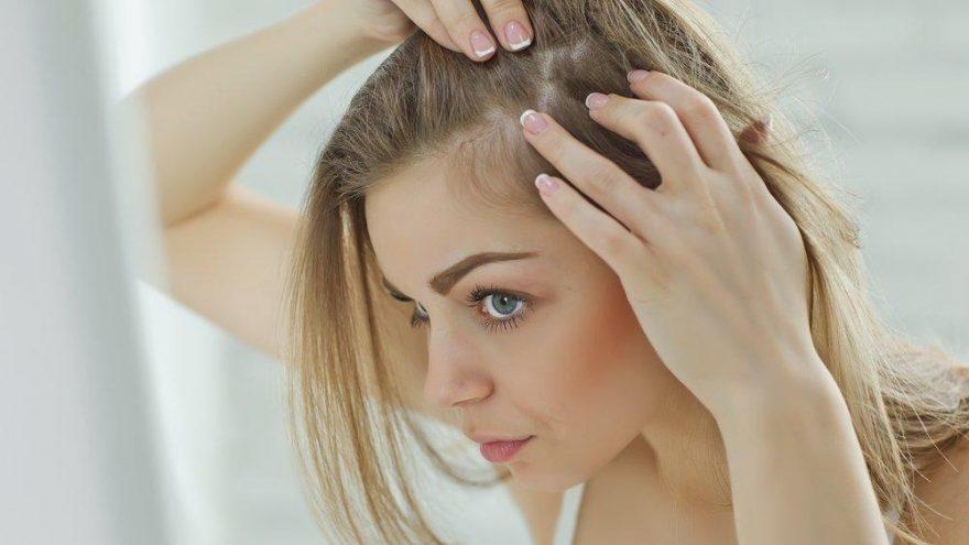 Sağlıklı saç derisi için ne yapılmalı?