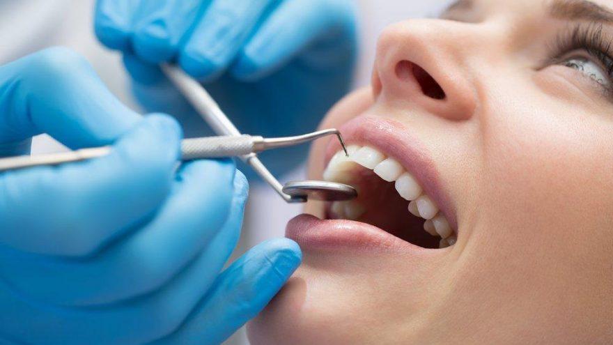 Diş minesi çatlaması için ne yapılabilir? Diş çatlağı tedavisi nasıl olur?