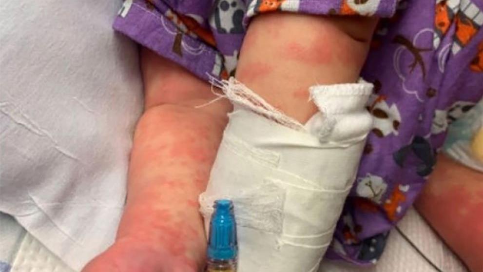 Coronayla birlikte çocukları vuran hastalık ABD'ye sıçradı! CDC alarm durumuna geçti