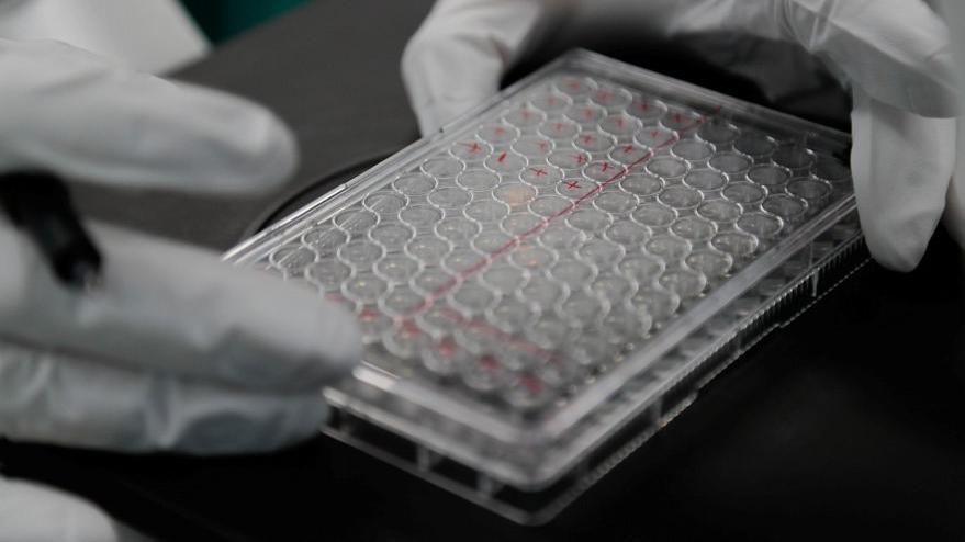İlaç şirketinden flaş aşı açıklaması: Eylül ayında dağıtıma başlayacağız