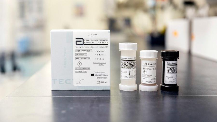 Corona virüsü ile mücadelede yeni antikor testi Türkiye'de