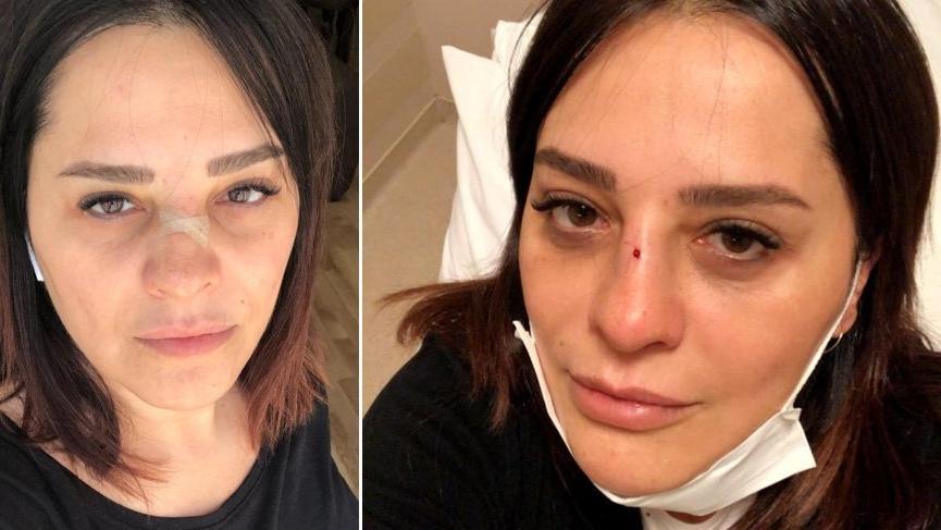 Ünlü şarkıcı Reyhan Karaca'nın burnu kırıldı!