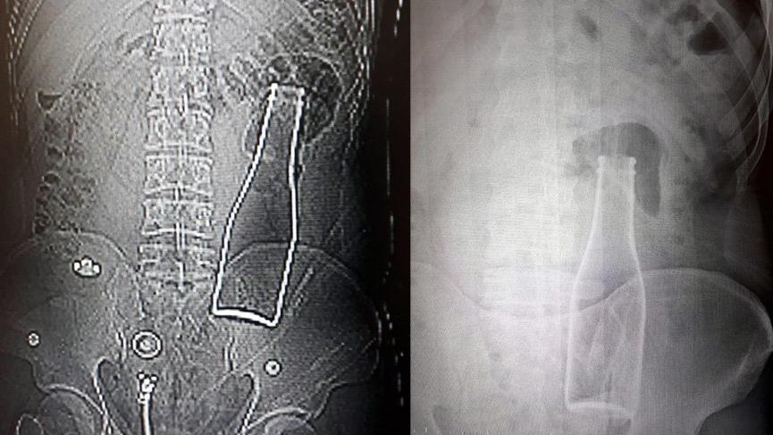 Karaman'da şaşkınlık veren olay: Vücudunda şişe olduğu ortaya çıktı