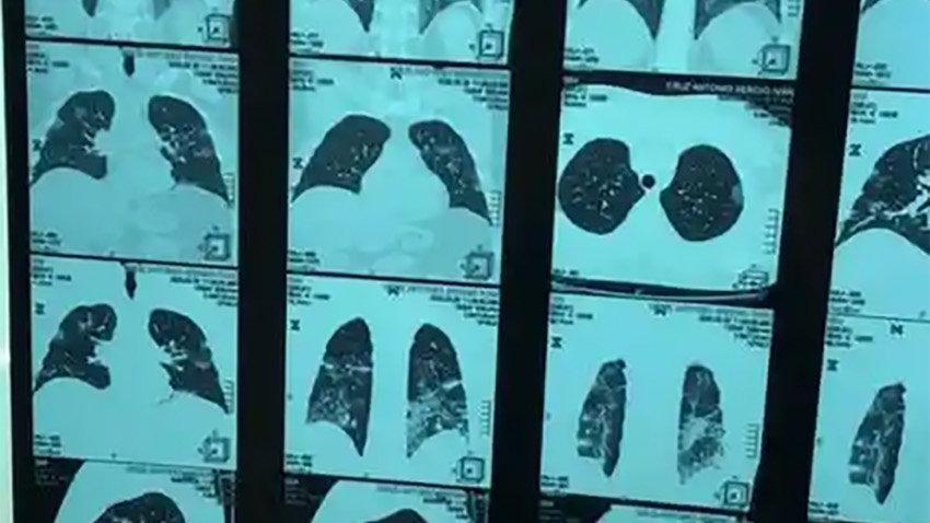 Corona virüsünden ölen doktorun ailesi paylaştı: Virüsün size neler yaptığını görün
