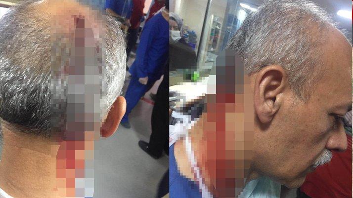 Elazığ'da doktora yumruklu saldırı