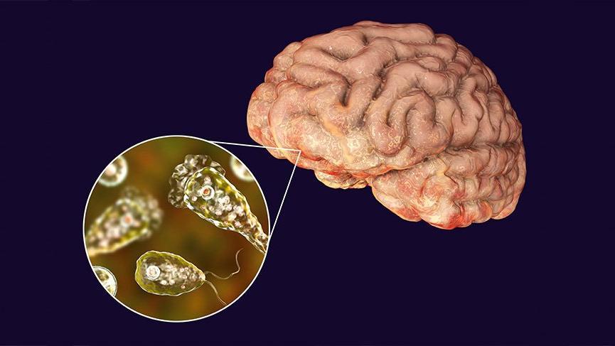 ABD'de görüldü: Burun yoluyla bulaşıyor, beyin yiyor