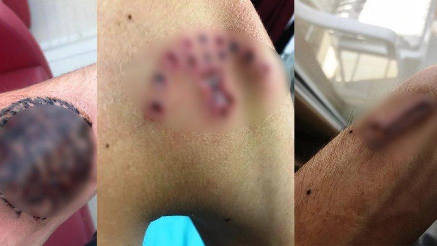 Hayalleri için dövmelerini sildirmek istedi: Cildi çürüdü