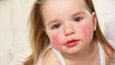 Bebeklerde besin alerjisi belirtileri nelerdir?