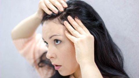 Saç diplerinde neden sivilce oluşur? Nasıl müdahale edilir?
