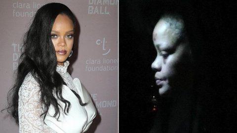 Rihanna'nın yüzündeki morluklar hayranlarını korkuttu