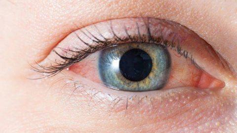 Göz kızarıklığı ne zaman Covid-19işareti olabilir?