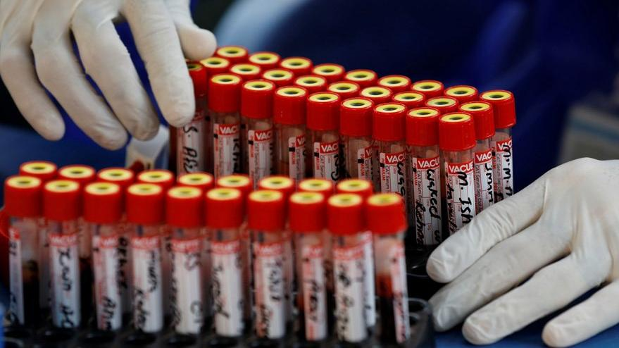 Corona virüsü aşısında yeni sonuç: Güçlendiriyor