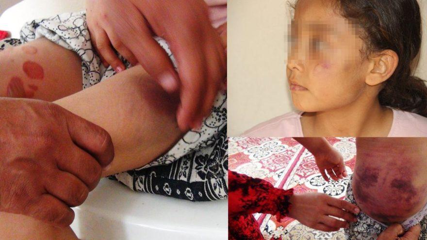 Çocuklarına işkence yapan baba için 5 yıl hapis isteniyor