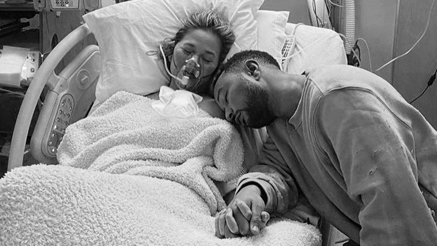 Bebeğini kaybeden Chrissy Teigen o fotoğrafları anlattı