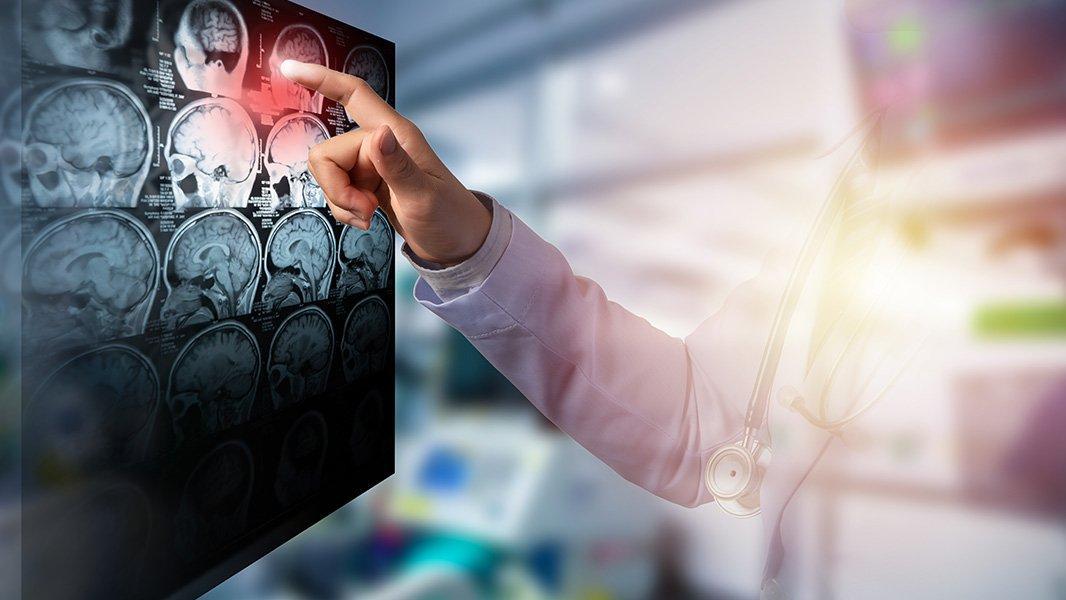 Dr. Kotan: İnme riskini yüzde 90 azaltabiliriz