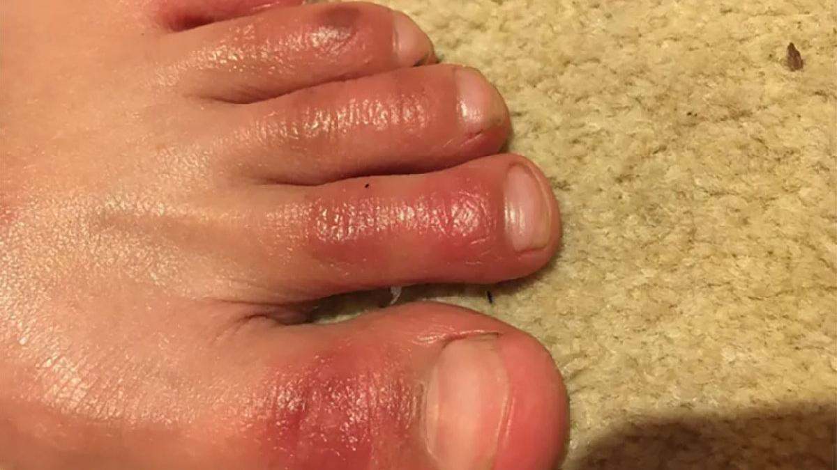 Corona virüsünde bir kalıcı etki daha: Ayaklarda deri reaksiyonu