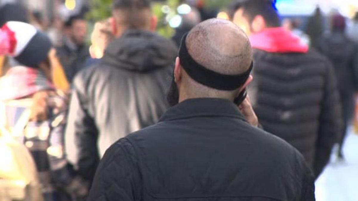 Saç ekimi sonrası ölüm iddiası! Klinikte inceleme yapıldı