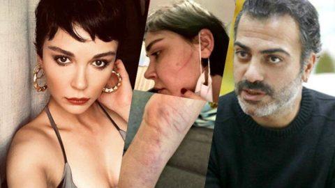 Sermiyan Midyat'ın Sevcan Yaşar'ı darbettiği fotoğraflar dava dosyasında