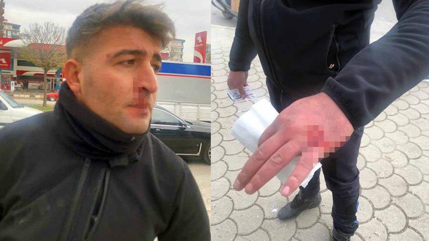 Zabıtalara bıçak ve sopalı saldırı: 2 yaralı