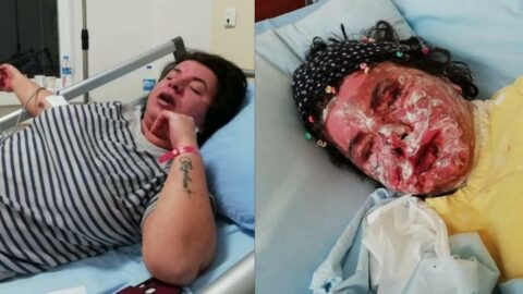 Alerji olan kadının derisi döküldü, sağ gözü görme kaybı yaşadı