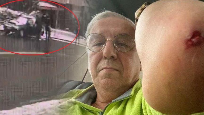 Ankara'da bir saldırı daha! Önce siyasetçi sonra da gazeteci dövüldü!