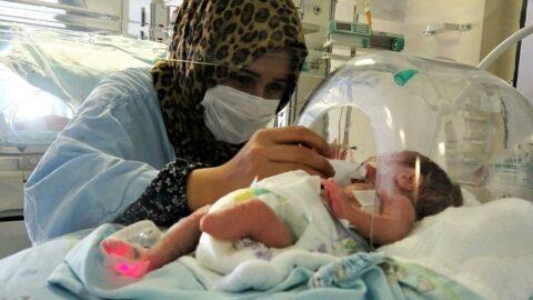 Parmak bebek, ayaksız olarak dünyaya geldi