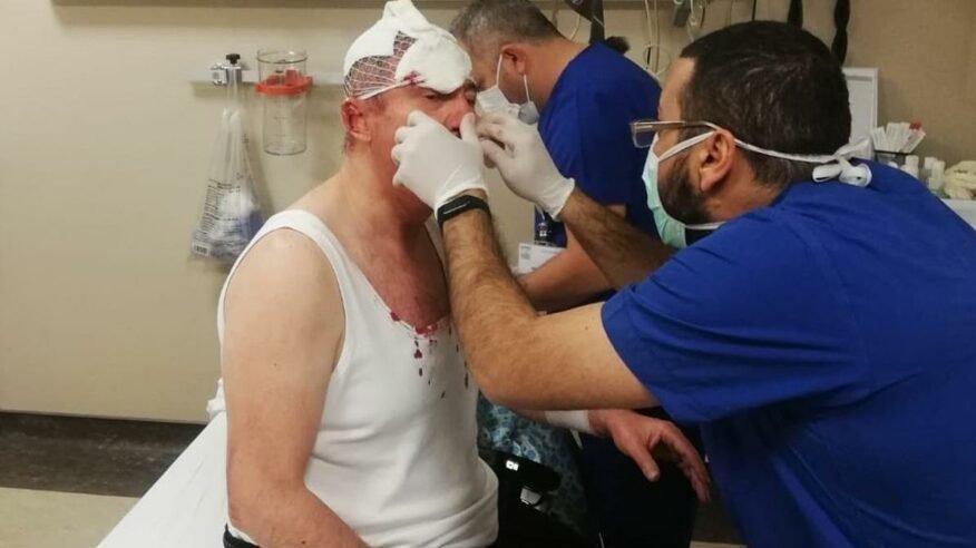 Selçuk Özdağ'a saldırıyla ilgili 4 şüpheli daha yakalandı