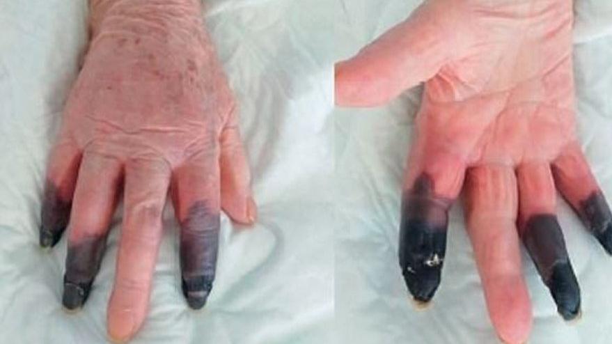 İtalya'da corona virüsü hastasının parmakları kesildi