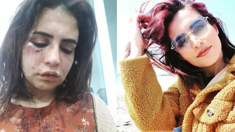 Genç kadını darp eden eski sevgili tutuklandı