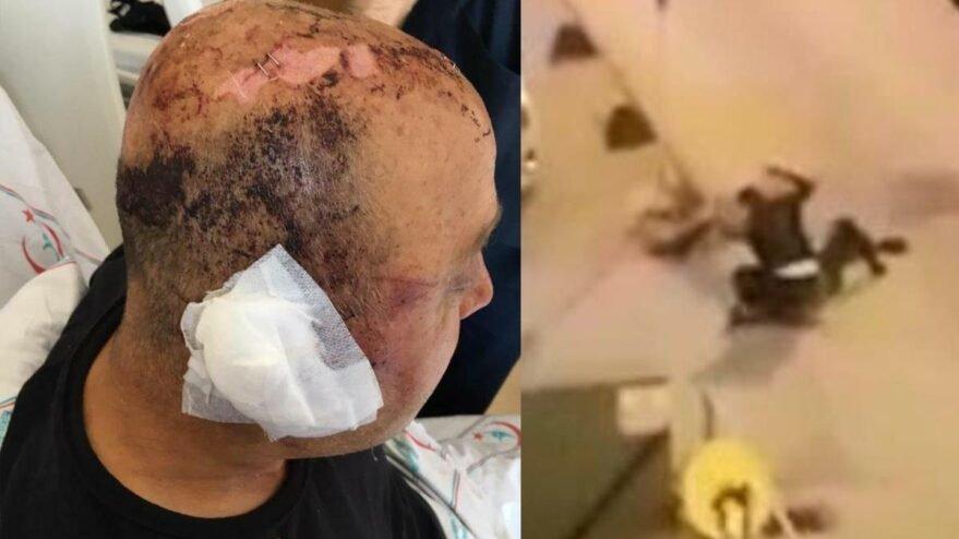 Telsizle dövülen polis memuru: Gözlerimi hastanede açtım