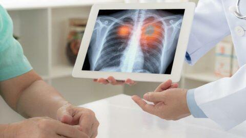 ADÜ Öğretim Üyesi Gülen: Sigara, akciğer kanserinin başlıca nedenidir