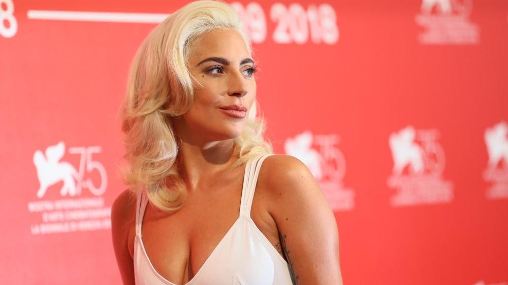 Lady Gaga'nın köpeklerini kaçıran 5 kişiye gözaltı