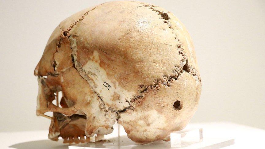 İlk beyin ameliyatının yapıldığı yer: Aşıklı Höyük