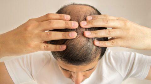 'Corona virüs hastalarında saç dökülmesi görülüyor'