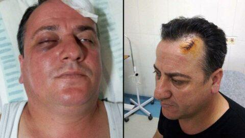 AKP'li başkan yardımcısı ve adamları taksici dövdü