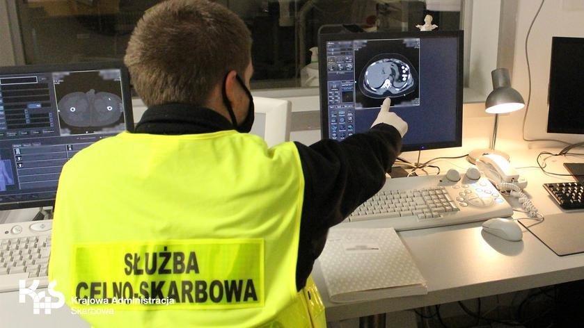 Varşova'da havaalanında yakalanan kaçakçının midesinden eroin çıktı