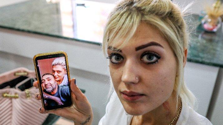 Sevgilisinin ensesinden vurduğu Zeliha: Öldürülmekten korkuyorum