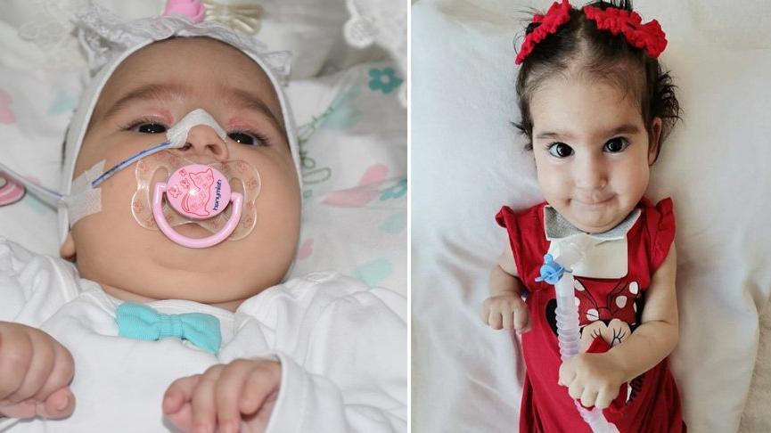 SMA hastası Elif bebek hayatını kaybetti