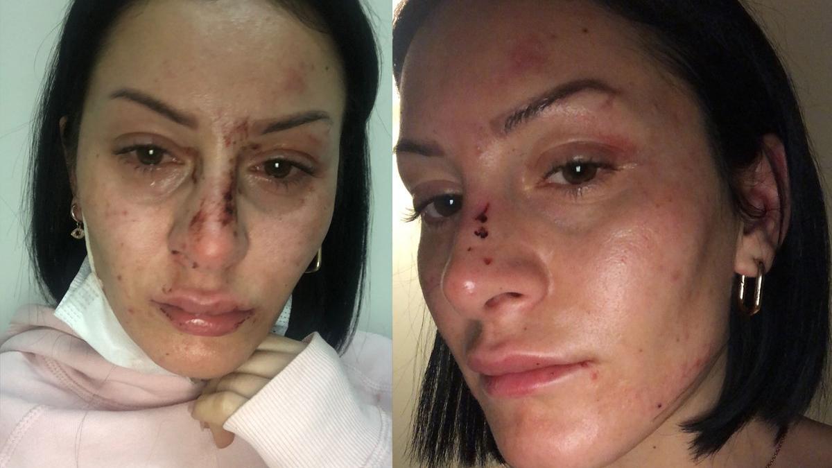 Polisin dövdüğü kadın: 'Doktor az bile benzetmişsiniz' dedi