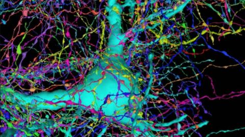İnsan beyninin 3D haritası için 225 milyon görüntü bir araya getirildi