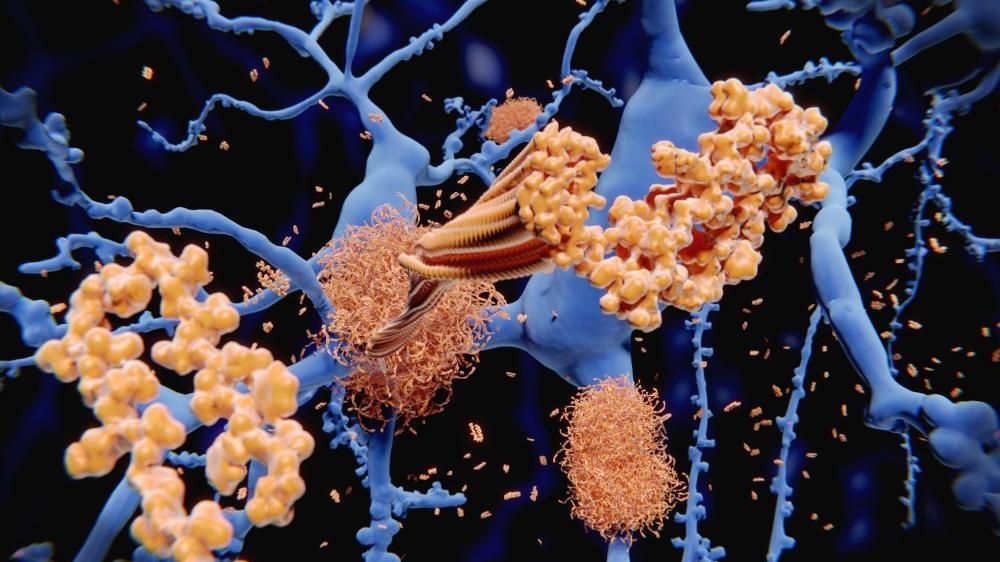 Alzheimer hastalığındaki keşif, yeni tedavi yöntemleri için umut oldu