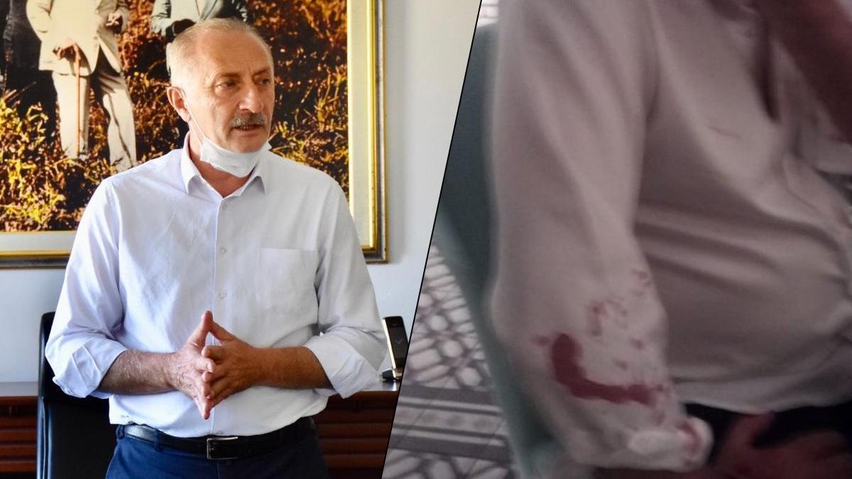 CHP'li belediye başkanına beyzbol sopalı saldırıda 7 gözaltı: Saldırganlar tanıdık çıktı