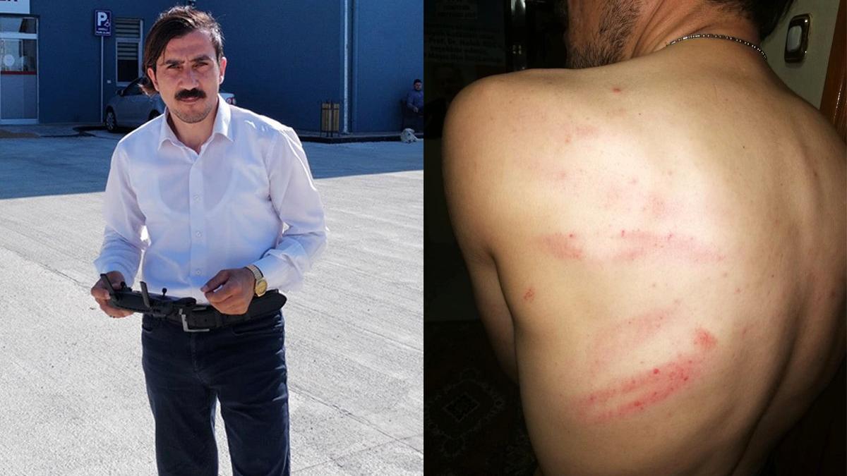 Hastanenin eksiklerini haber yapan gazeteciyi dövdüler